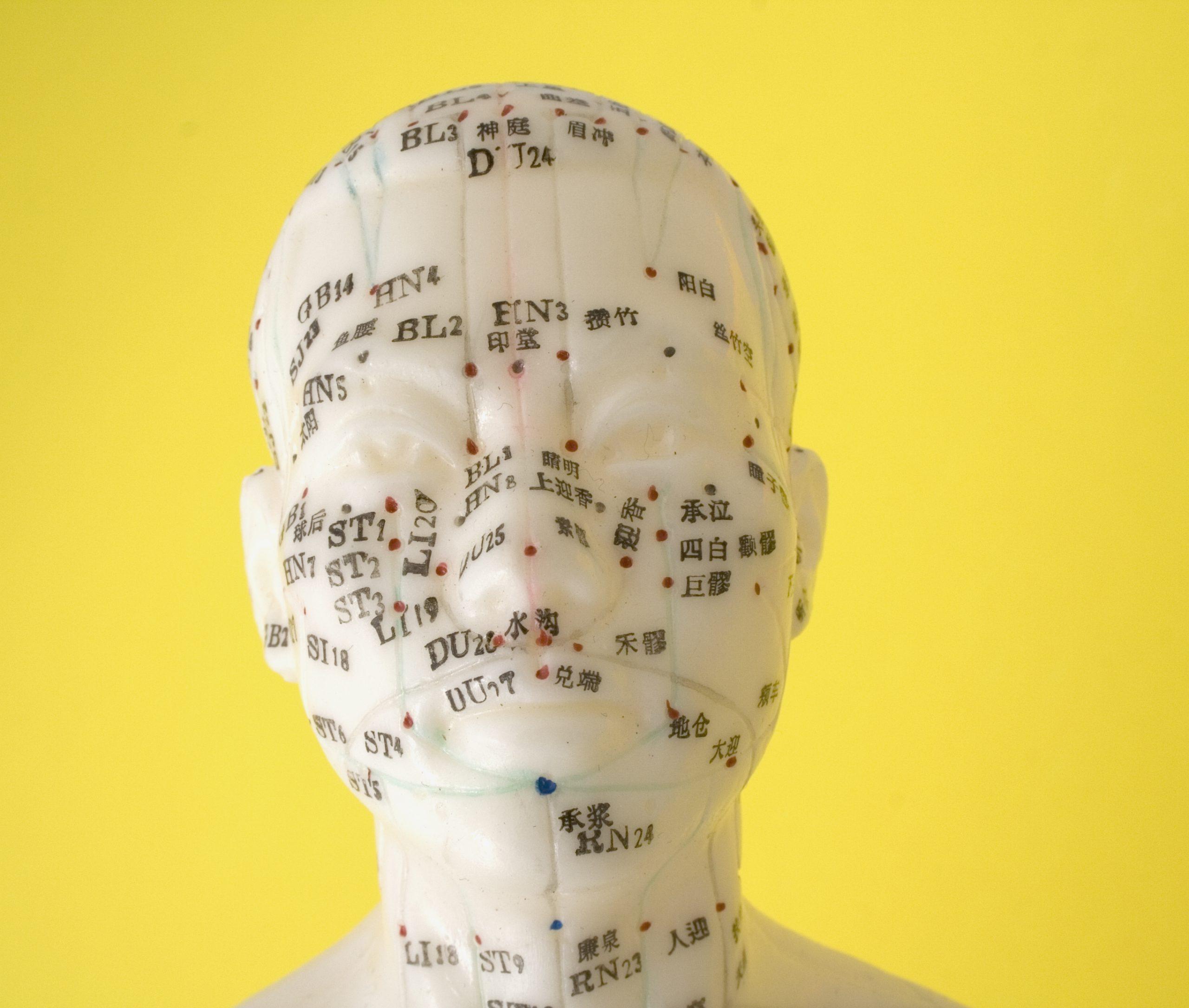 Comment soulager la névralgie faciale par l'acupuncture - Dr Nguyen à Paris