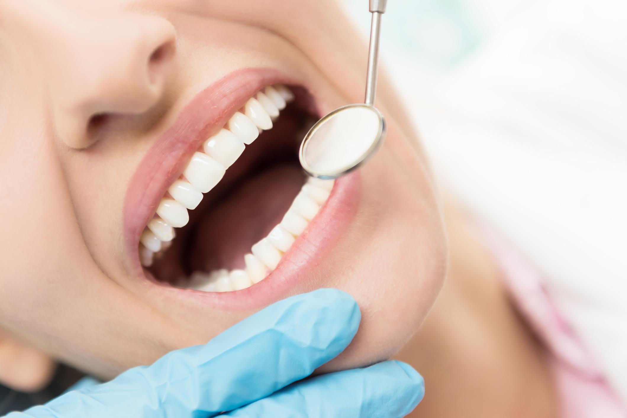 Alzheimer en lien avec un pathogène bucco-dentaire ? Dr NGUYEN à Paris