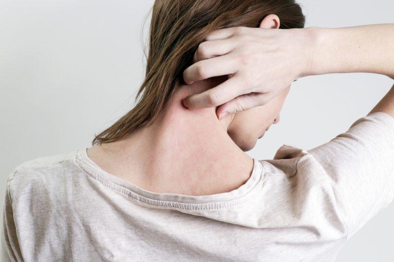 Apport de l'Acupuncture dans le traitement de la Rosacée - Dr Nguyen à Paris
