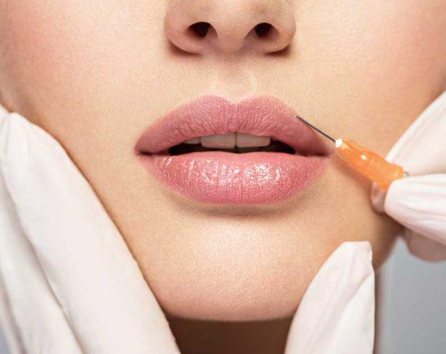 Les injections d'acide hyaluronique pour repulper les lèvres à Paris - Dr Nguyen