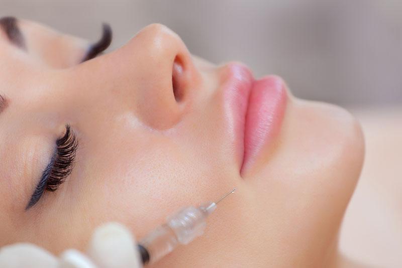 Injections d'acide hyaluronique pour combler le pli d'amertume à Paris - Dr Nguyen
