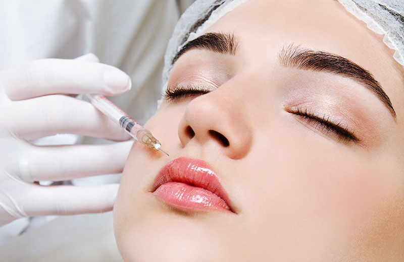 Injection d'acide hyaluronique pour les lèvres à Paris - Dr Nguyen