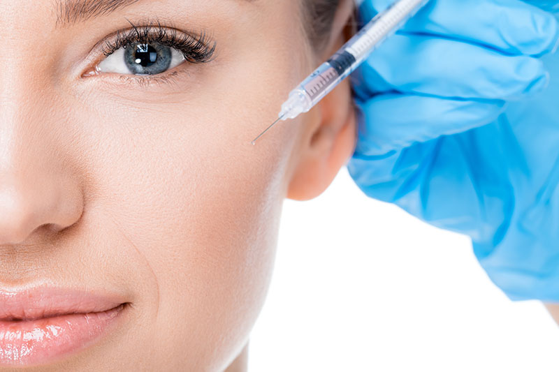 Injection d'acide hyaluronique pour les pommettes à Paris - Dr Nguyen