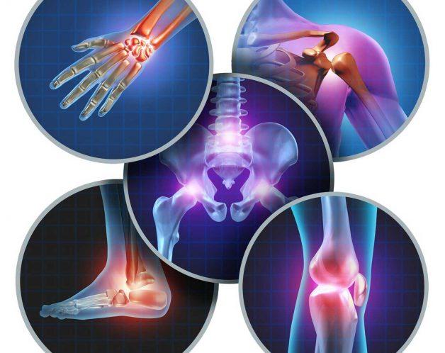 Arthrose par mésothérapie à Paris - Dr Nguyen