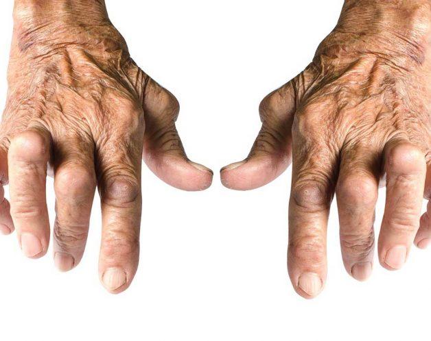 La polyarthrite rhumatoïde par mésothérapie à Paris - Dr Nguyen