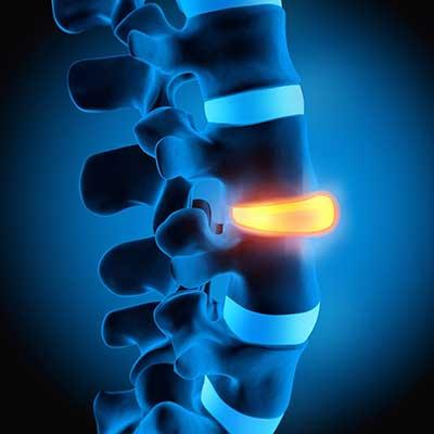 Névralgie sciatique par mésothérapie à Paris - Dr Nguyen