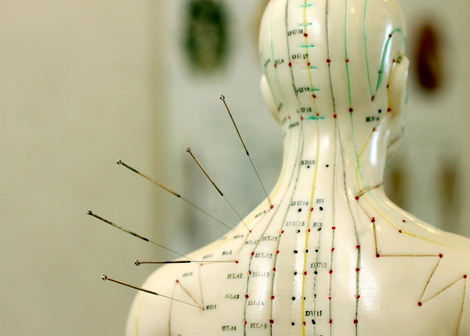 Centre de de médecine esthétique et d'acupuncture à Paris - Dr Nguyen