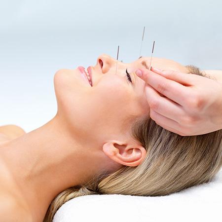 Lifting par acupuncture à Paris - Dr Nguyen